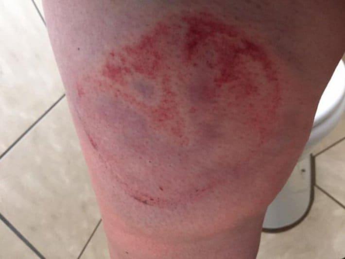 Смотрите-как-выглядит-нога-после-удара-копытом-день-первый