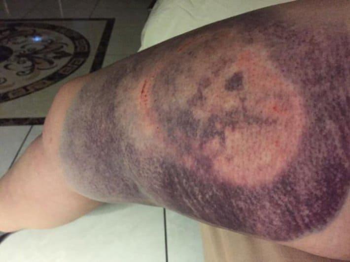 Смотрите-как-выглядит-нога-после-удара-копытом-прошла-две-недели