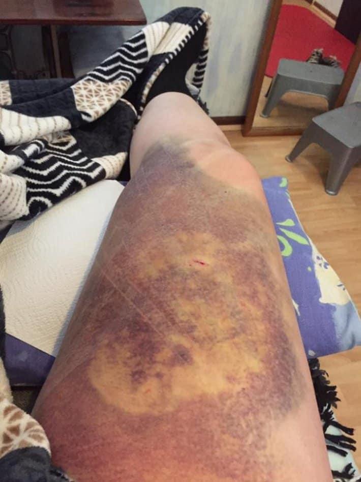 Смотрите-как-выглядит-нога-после-удара-копытом-прошла-пать-недель