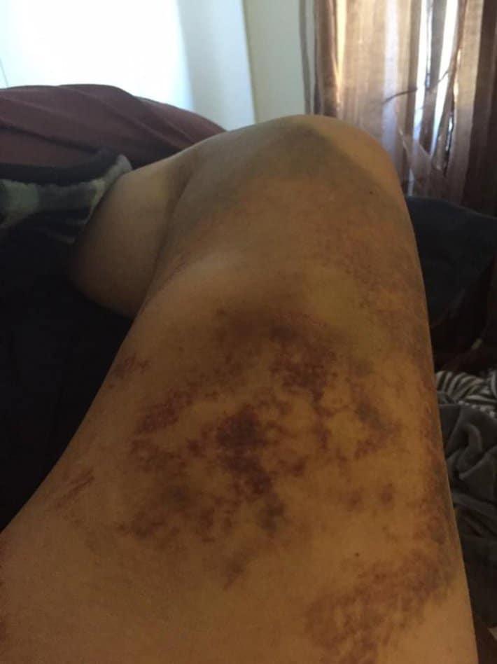 Смотрите-как-выглядит-нога-после-удара-копытом-прошла-семь-недель