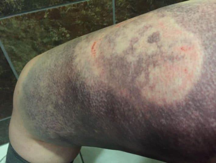 Смотрите-как-выглядит-нога-после-удара-копытом-прошла-четыре-недели