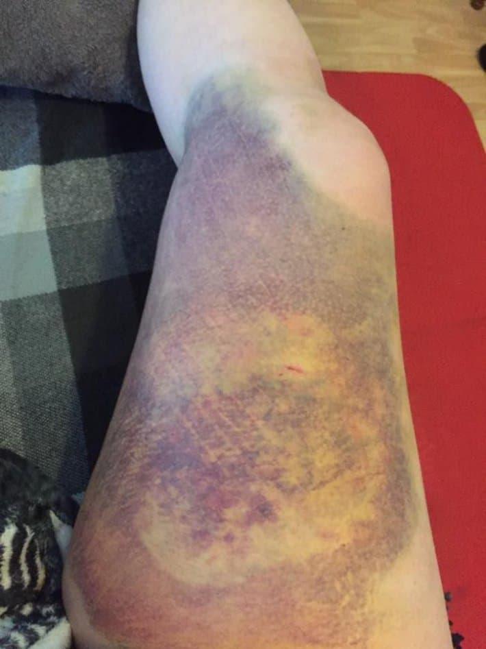Смотрите-как-выглядит-нога-после-удара-копытом-прошла-шесть-недель
