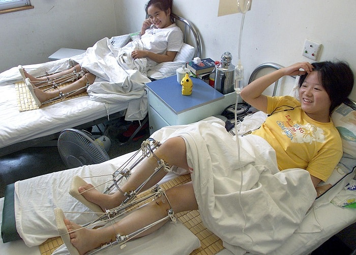 HANGZHOU, CHINA:  Patients sit in their beds recovering after having operation to lengthen their legs at a hospital in China's eastern city of Hangzhou in Zhejiang province, 15 August 2002.  The leg lengthening operation is beijing used just like plastic surgery, whereby people accept the risks in hope of becoming more confident after increasing their height.   AFP PHOTO (Photo credit should read LIU JIN/AFP/Getty Images)