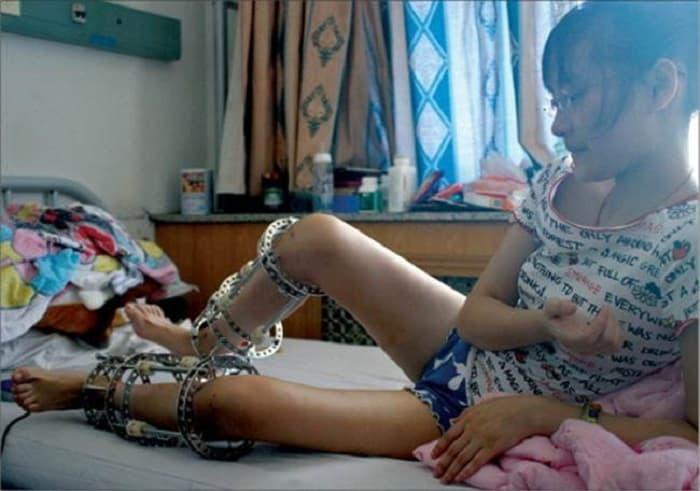 Вот-на-что-идут-индийские-девушки-ради-красоты